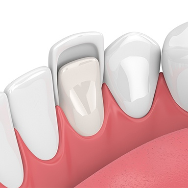Animation of porcelain veneer placement