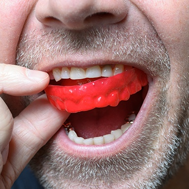 Man placing sports mouthguard