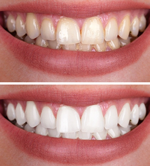 Zoom Teeth Whitening In Horseshoe Bay Yellow Teeth Dr Sopel