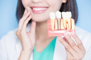 Dentist holding model jaw with dental implants in Marble Falls